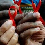 HIV AIDS image